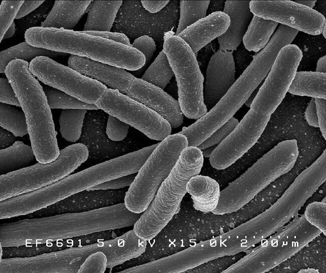 E. Coli under a microscope